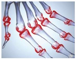 rheumathoide arthritis symptoms